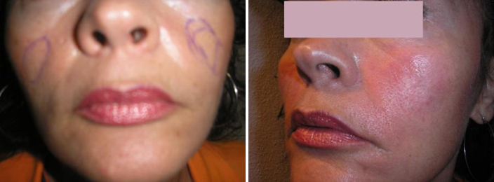 Cheek Implant Before After