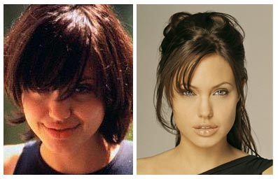 angelina nose surgery before after