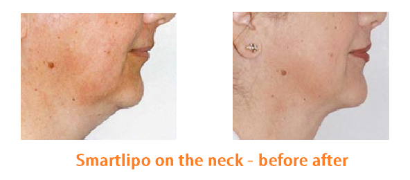 Liposuction on the neck before after picture